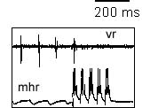 Current pulses injected into an MHR evoke action potentials and stop swimming seen in ventral root (vr)
